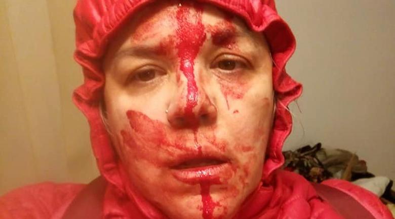 Мижитурка преби жена с метален прът в софийската мъгла
