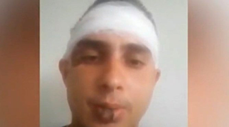 Музикантът, който бе пребит в Литаково, разказа за инцидента