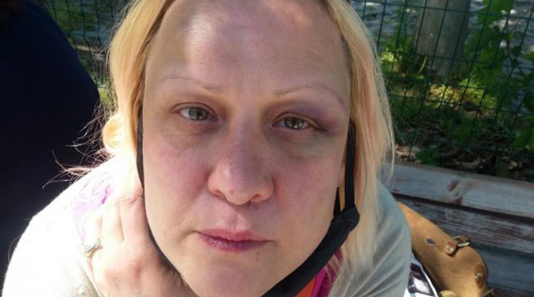 Наркомани пребиха брутално две жени в Пловдив