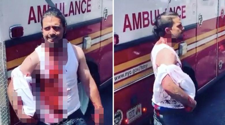 Шокиращо: Мъж се разходи със забит в черепа нож, дори си поговори с минувачите