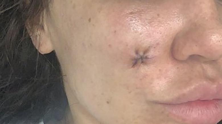 Дерматолог обезобрази жена, жалва се в съда