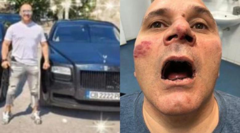 Арестуваха Иван Вазелина за жесток побой над работника от Панагюрище