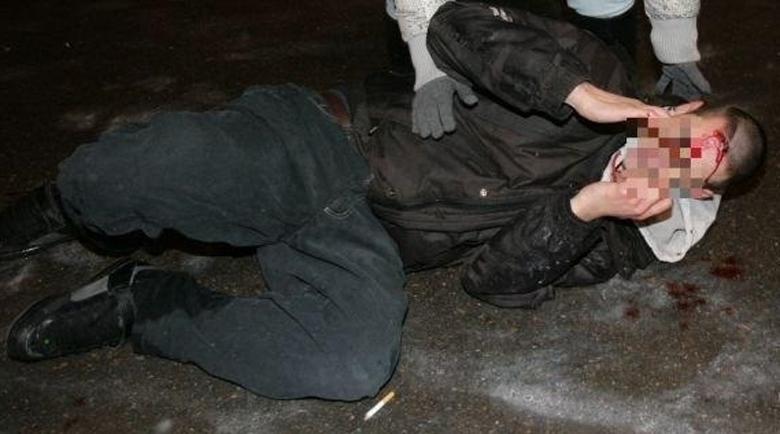 Селски разправии: Счупени зъби на пазара в Кюстендил