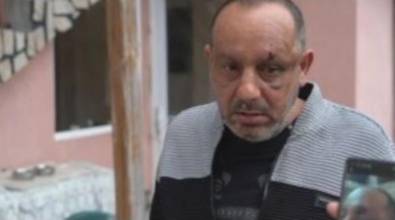 Пребиха и ограбиха мъж във Видинско, защото карал бавно