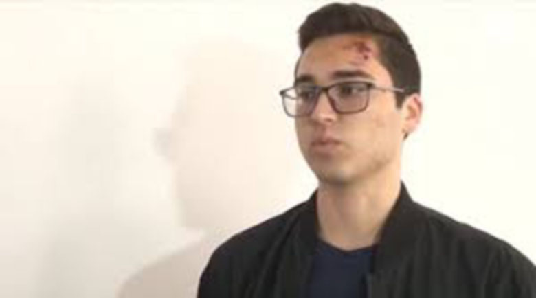 Ученикът, бит от полицай в Благоевград: Налагаше ме с юмруци